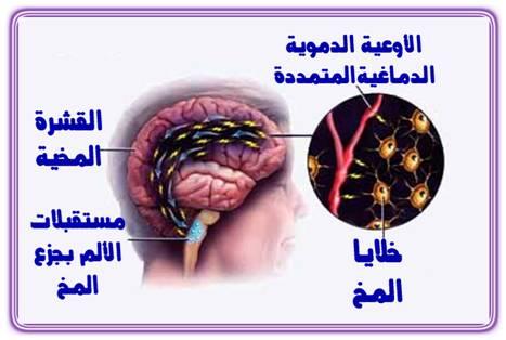 علاجات طبيعيه للصداع النصفى AmSalah_image020